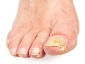 Чем обработать обувь от грибка: препараты и народные средства обработки обуви при грибке ногтей на ногах